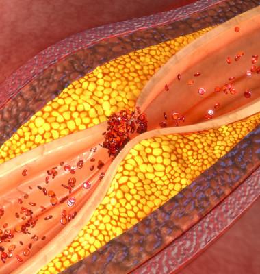 artere vase de sange