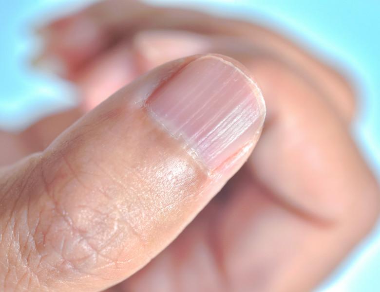 unghie cu linii mana om