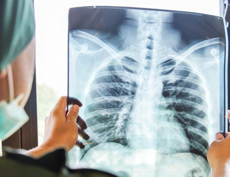 radiografie pulmonară