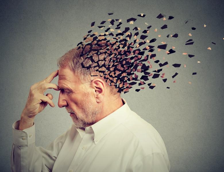 Memory,Loss,Due,To,Dementia.,Senior,Man,Losing,Parts,Of