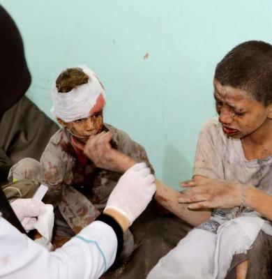 Copii răniți în Yemen