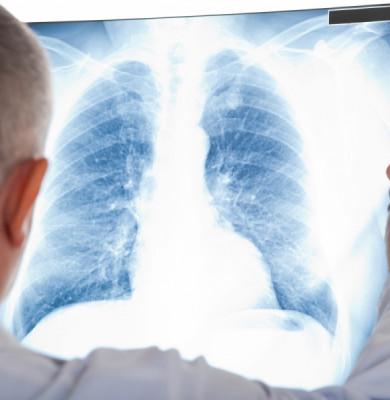 Radiografie pulmonară, doctor, tuberculoză, TBC