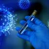 Analiză, test, coronavirus, COVID-19, SARS-CoV-2