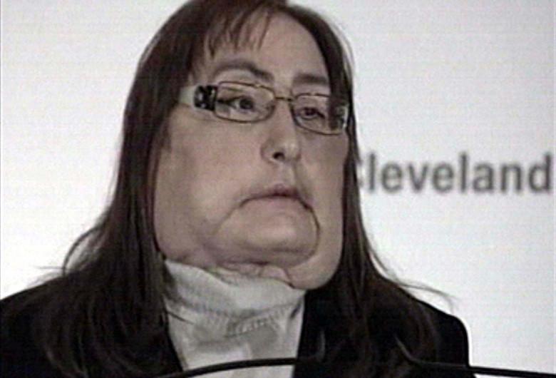 femeie transpalnt fata
