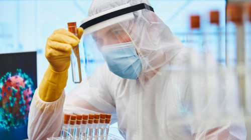 test-coronavirus-profimedia