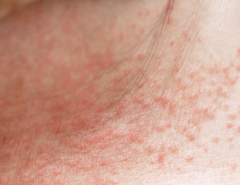 Skin,Disease,Prickly,Heat,Rash,Or,Miliaria,On,Belly,Skin