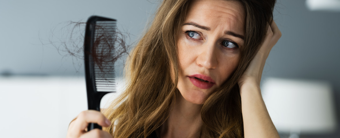 Woman,Suffering,From,Hairloss,Or,Hairfall,Problem