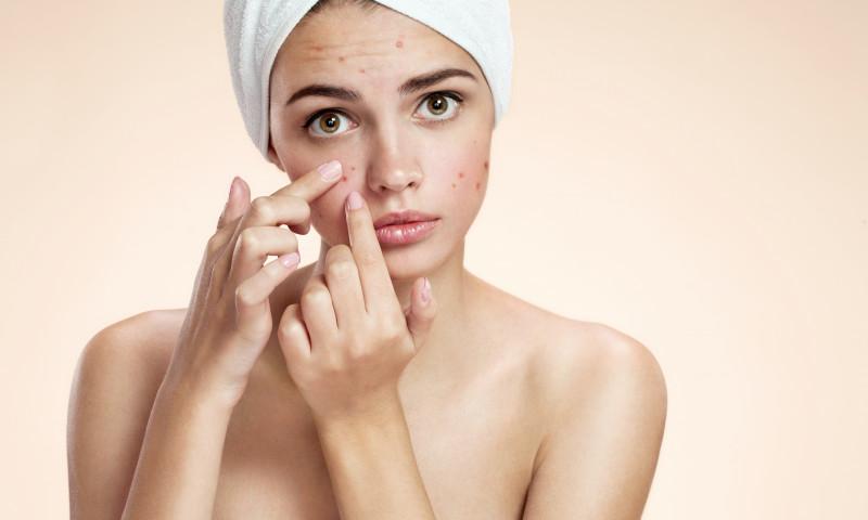 acnee vulgara