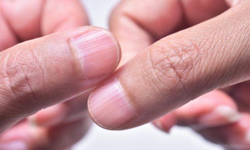 incretituri unghii