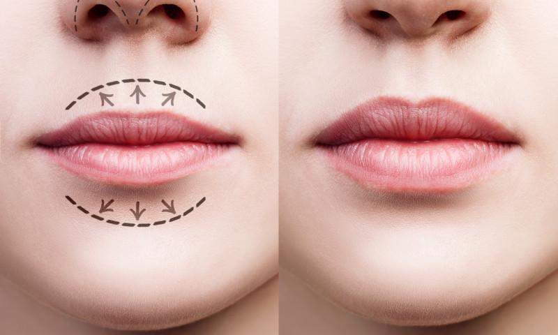 forma buzelor