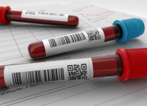 """Un inginer a descoperit un tratament de """"curatare"""" a sangelui cu ajutorul magnetilor. Cum functioneaza tehnologia inedita"""
