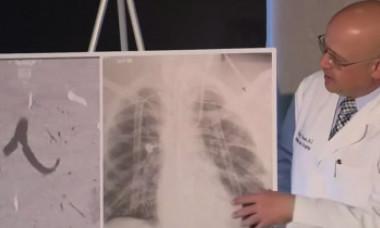 Un adolescent credea că are pneumonie, însă a avut nevoie de dublu transplant de plămâni. Medic: Nu am mai văzut așa ceva