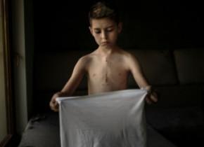 Adrian Câtu, premiu de excelență la un concurs internațional pentru o fotografie cu un copil operat