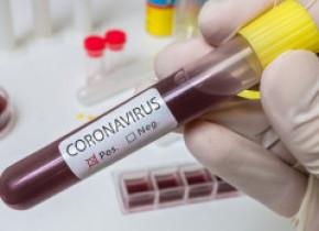 Testare coronavirus. Cum vor fi aleși la nivel național oamenii din studiul ce va arăta cât din populație a trecut prin boală