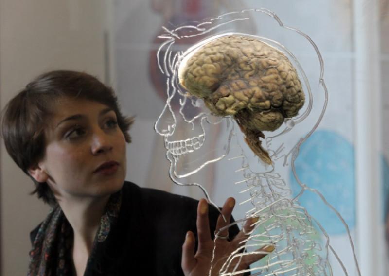 creier neurologie