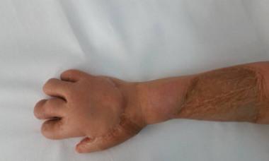 """Cu mâna strivită, la un pas de amputare, dar fără pensie de boală. Comisie: """"Aveţi falange! Asta e!"""""""