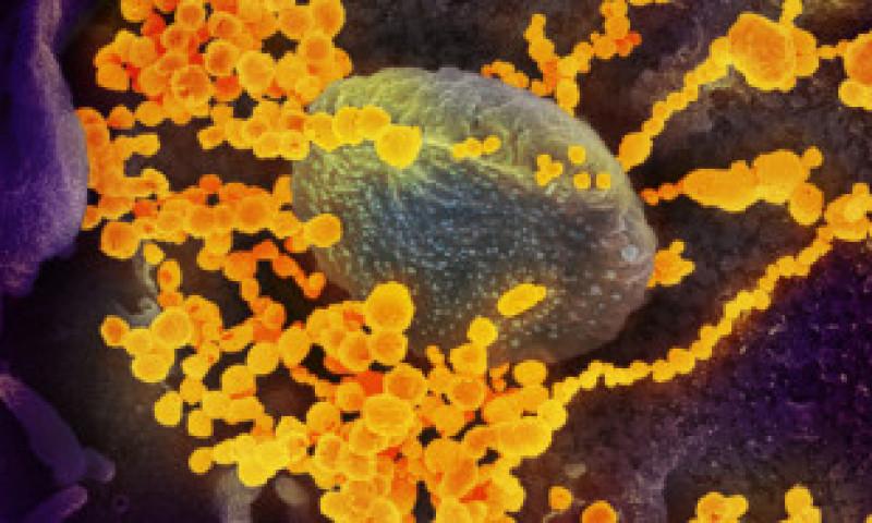 România a trecut de 800.000 de infectări cu coronavirus de la debutul pandemiei