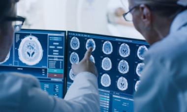 A apărut o nouă boală cerebrală misterioasă. Medicii sunt bulversați și nu au tratament. Au fost înregistrate primele decese