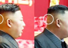 Kim Jong-un stârnește din nou speculații. De ce poartă un plasture pe ceafă