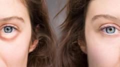 Cum scapi de pungile inestetice de sub ochi