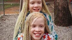 Sunt doua fotomodele iesite din comun: nu au pic de culoare in par, ochi sau pe piele. Imagini spectaculoase cu gemenele albino