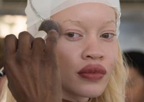 Modelul afro-american albinos care face furori în industrie. Secretul extraordinar pe care îl ascunde