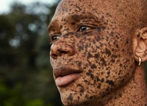 Are o culoare unică a pielii. Cine e și ce are tânărul care au uimit lumea cu aspectul lui deosebit